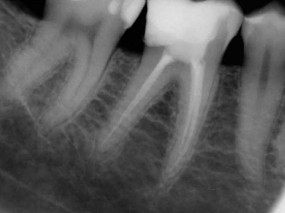 endodoncia-molar-inferior-gorosabel-dental-2