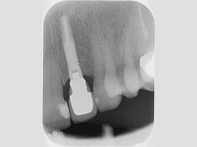 implante-unitario-sector-anterior-gorosabel-dental-3
