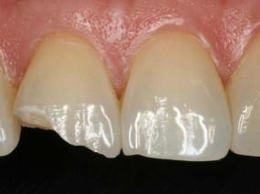trat-fracturas-caso-1-gorosabel-dental-1