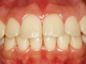 trat-periodontal-desinflamatorio-gorosabel-dental-2