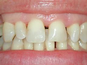 elongacion-coronaria-gorosabel-dental-1