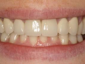 tratamiento-coronas-de-ceramica-8