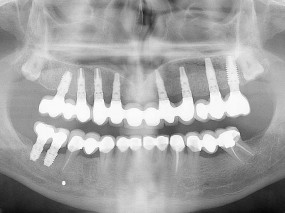 implantes-gorosabel-dental-8