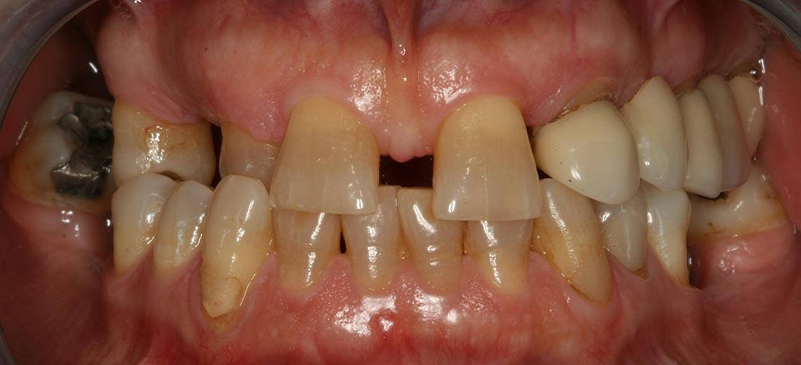 gorosabel-dental-multidisciplinar-slider