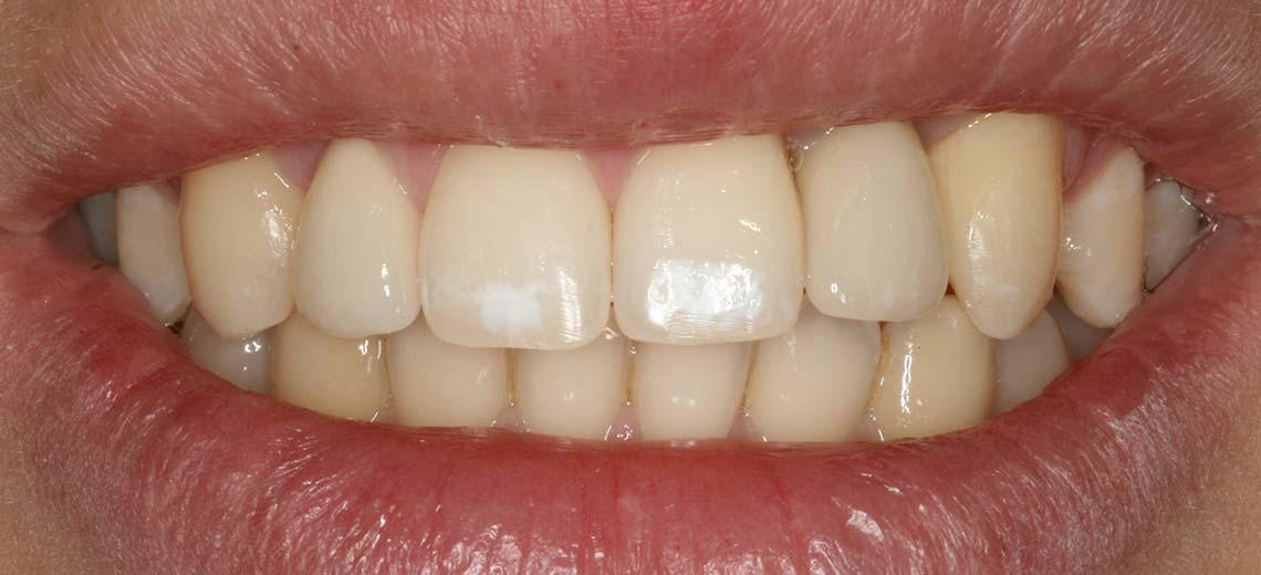 gorosabel-dental-caso-multidisciplinar-ortodoncia
